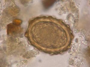 La limpieza del intestino de las lamblias